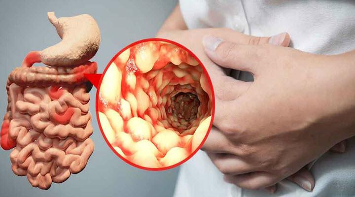 Boala Crohn Se Poate Vindeca